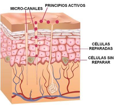 dermapen microcanales