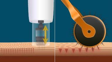 microneedling-pen-roller